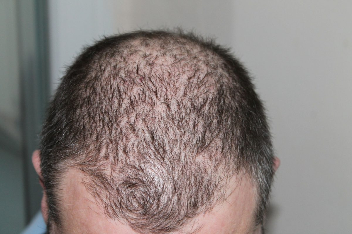 Hair Transplantation: Your Questions Answered